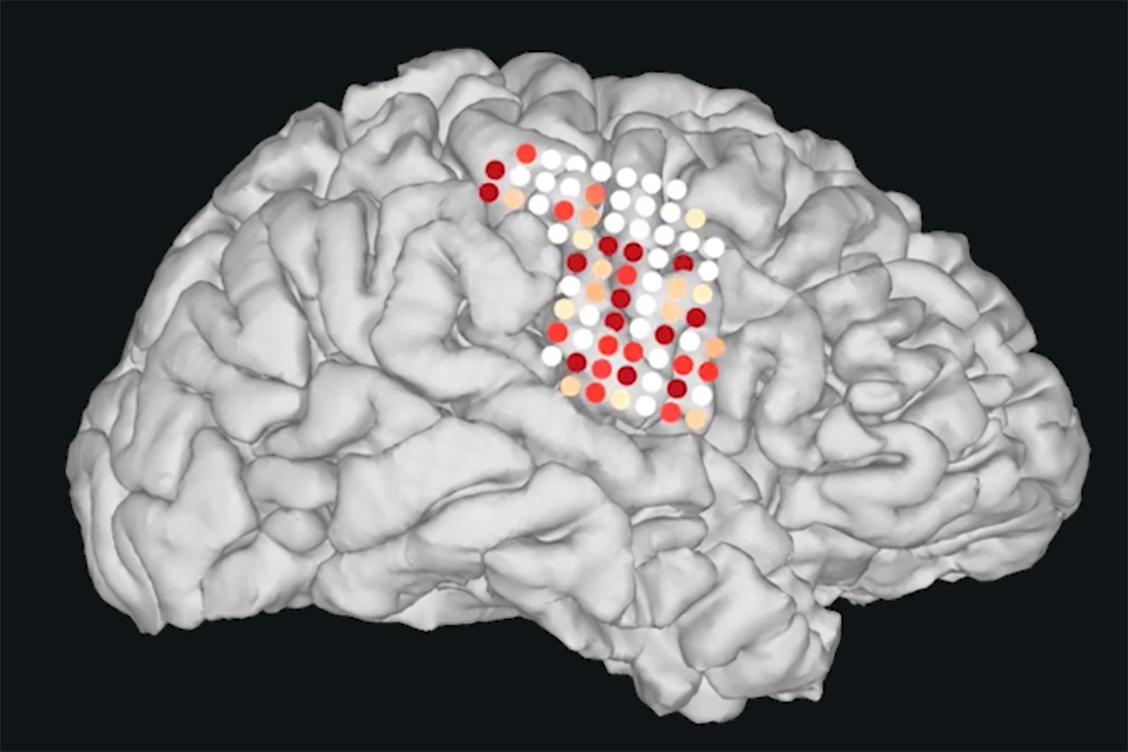E se uma máquina falasse por você? Tecnologia traduz sinais cerebrais em fala