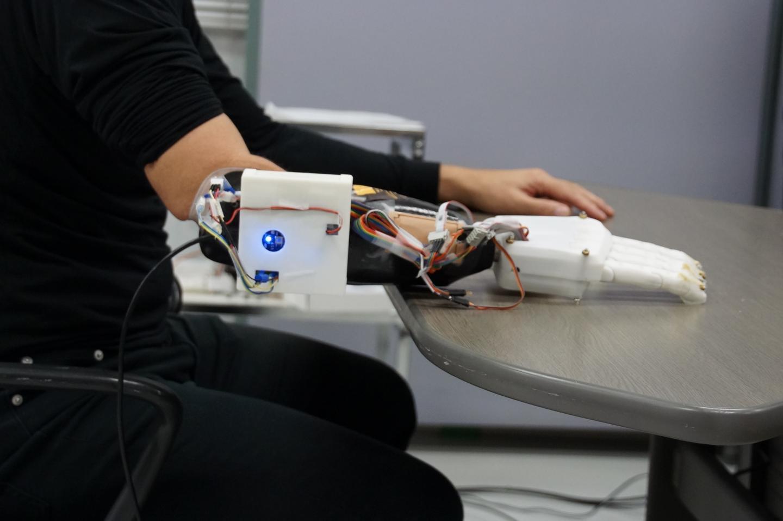 Novo sistema de prótese manual promete maior precisão e treinamento mínimo