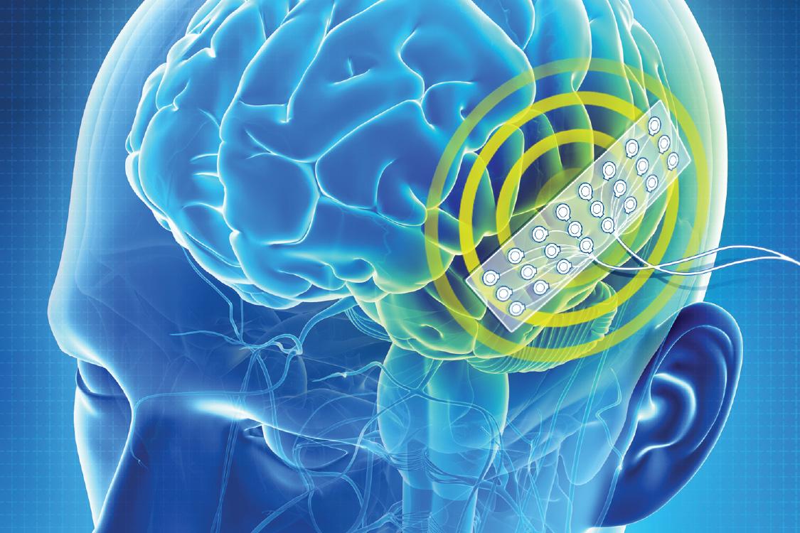 Orion: implante cerebral pode fornecer percepção visual
