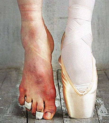foto de comparativo entre pés de bailarina