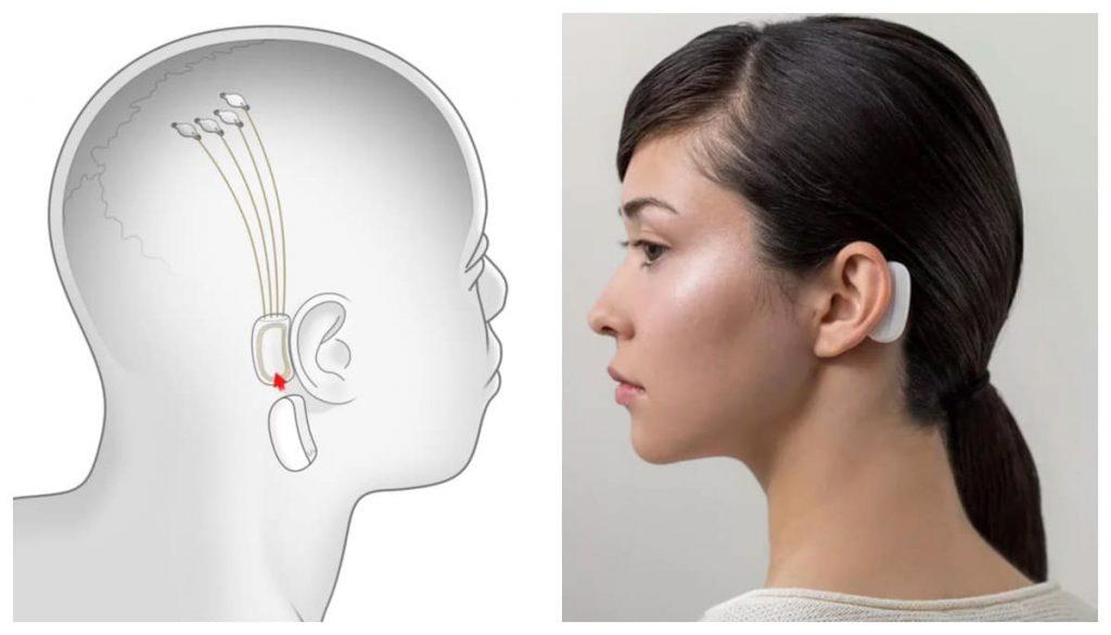dispositivo da neuralink atrás da orelha de mulher