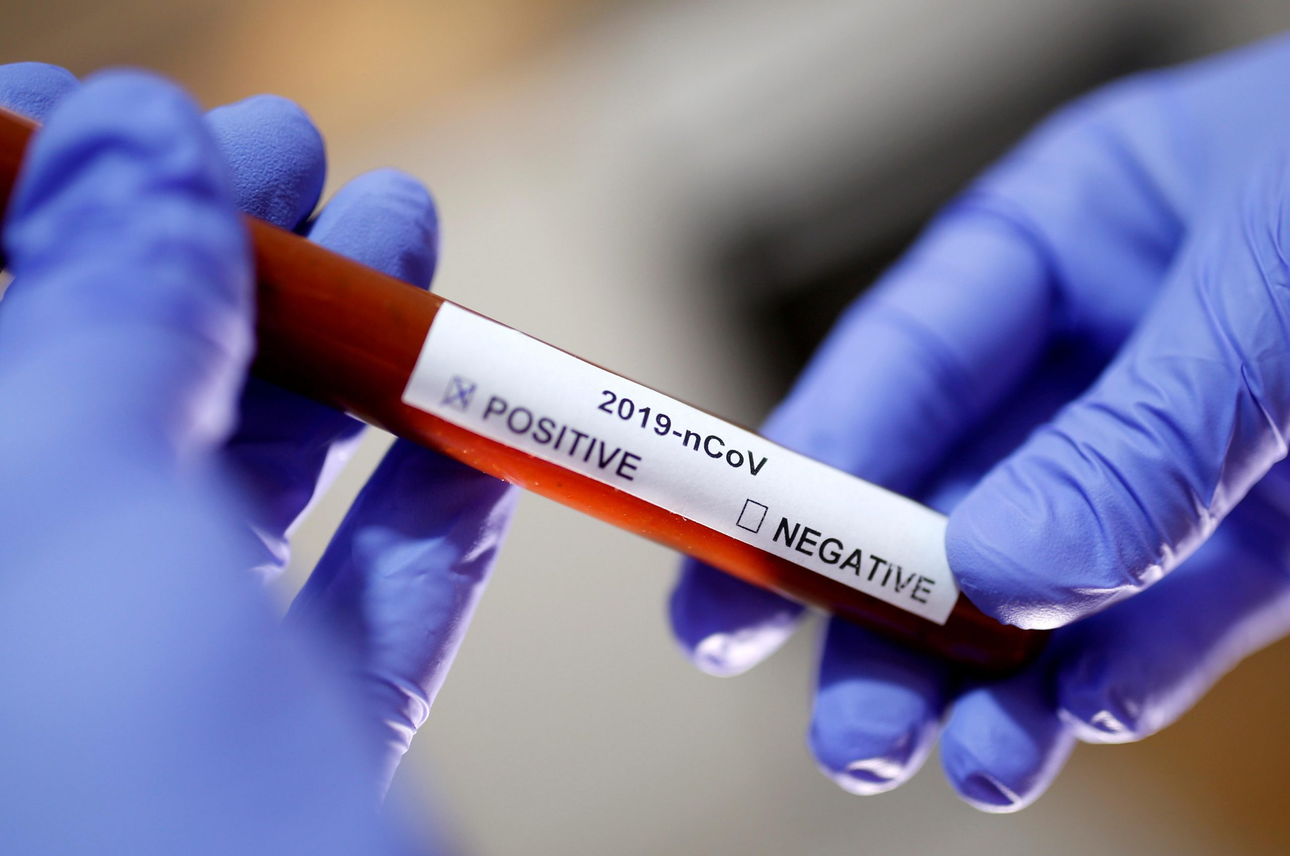 Cientistas brasileiros estão desenvolvendo testes  rápidos para detectar coronavírus
