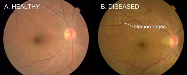 Comparação entre retina saudável e condição de retinopatia diabética. Imagem: Google Health.