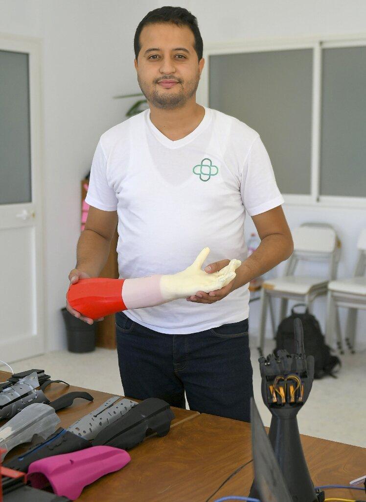 fundador da cure bionics mão biônica