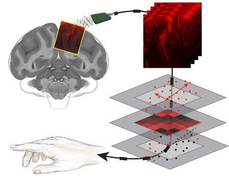 Um diagrama que ilustra como funciona novo tipo de ultrassom.